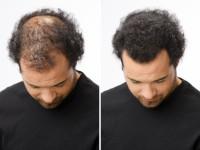 Мезотерапия для волос — действительно рабочий метод лечения от выпадения + фото