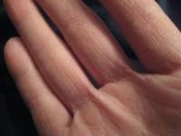 Сухость кожи рук: лучшие домашние средства из природных ингредиентов (74 фото рецептов)