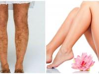 Удаление волос на ногах — убираем волоски без боли и пропусков + 91 фото