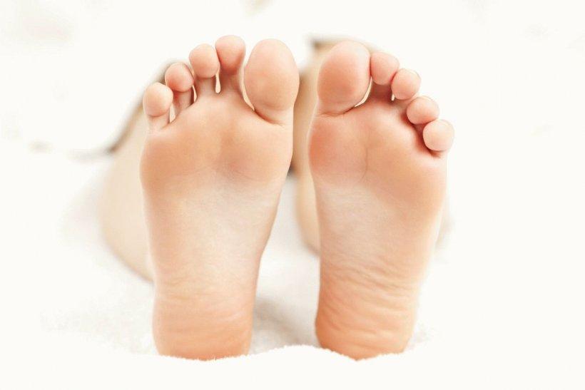 Cuhie mozoli na nogah 3