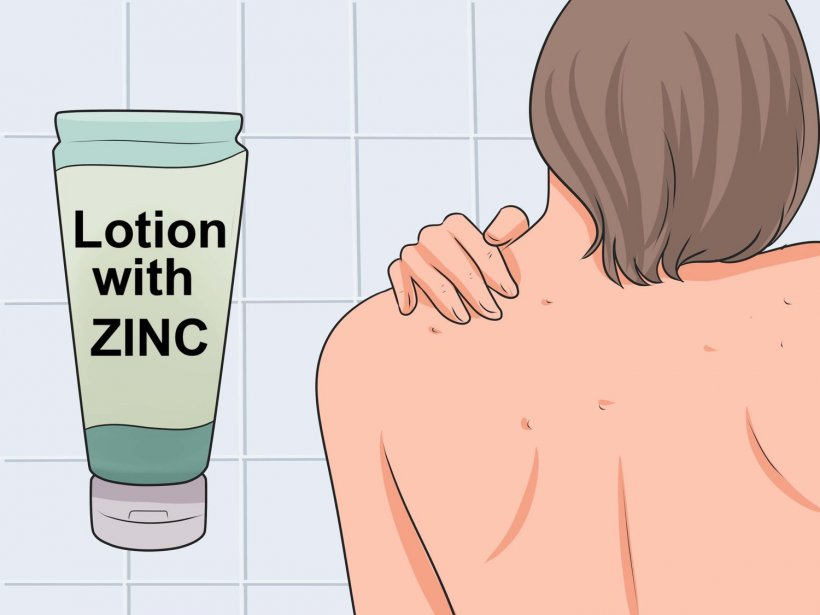 How to get rid of pimples on your back 4