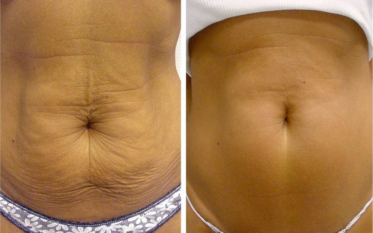 Антицеллюлитный массаж живота до и после
