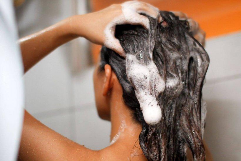 Загрязнение кожи головы