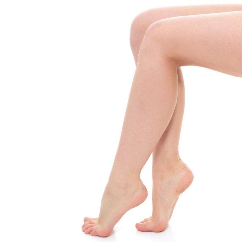 Udalenie volos na nogah 21