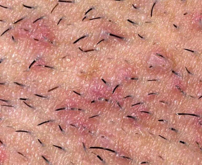 Vrosshie volosyi na nogah 8