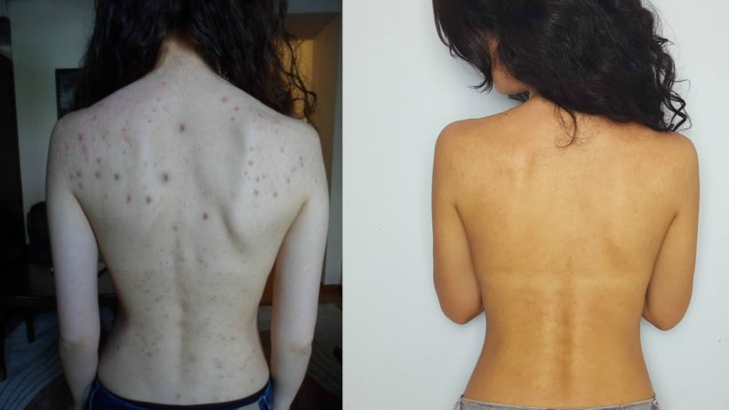 How to get rid of pimples on your back 5