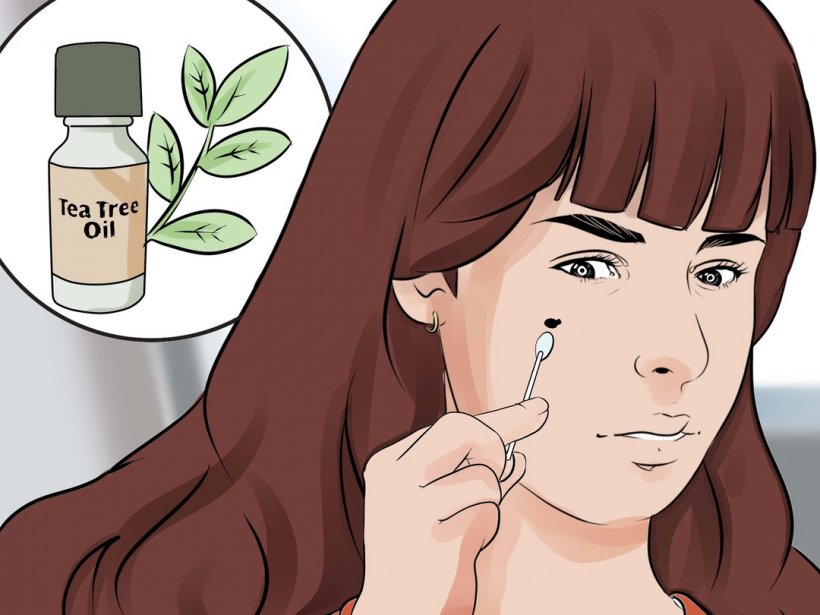 How to get rid of warts at home 1 5