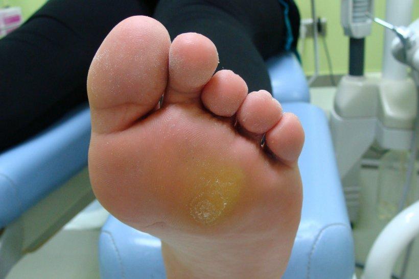 Suhie mozoli na nogah 33