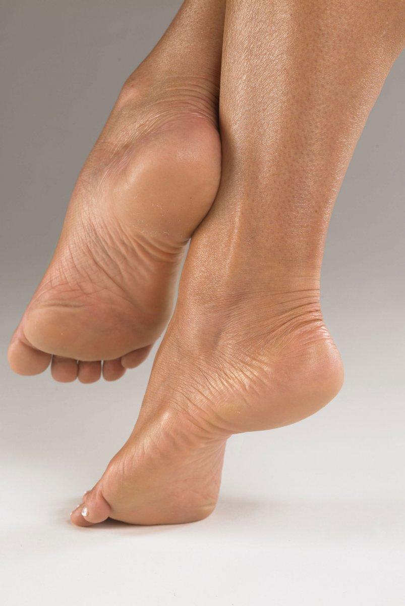 Suhie mozoli na nogah 47
