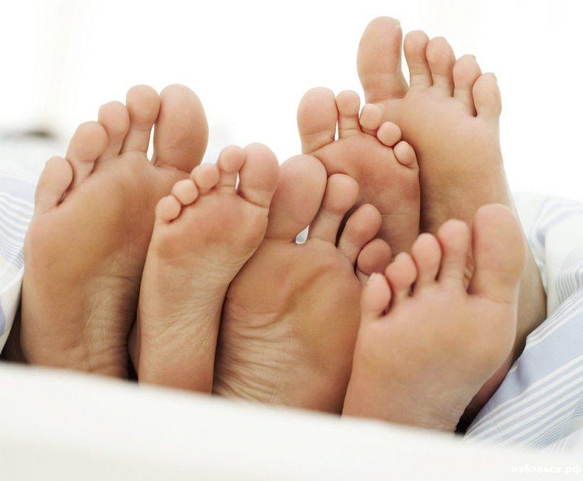 Suhie mozoli na nogah 5