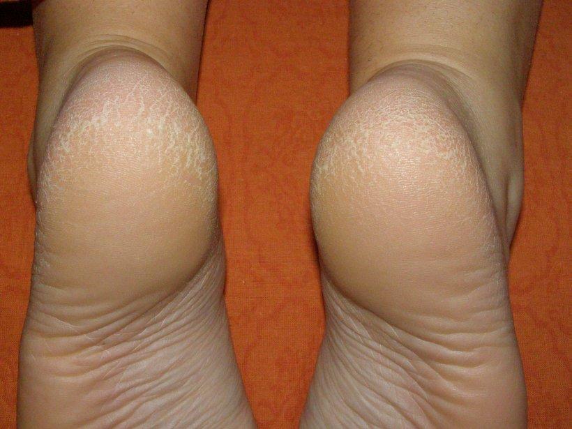Suhie mozoli na nogah 50