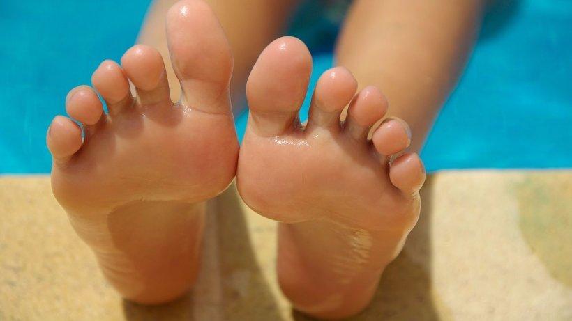 Suhie mozoli na nogah 6